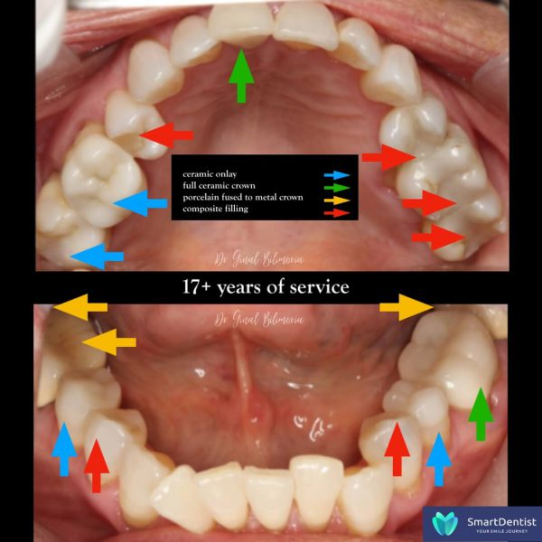 Dental Treatment Albany
