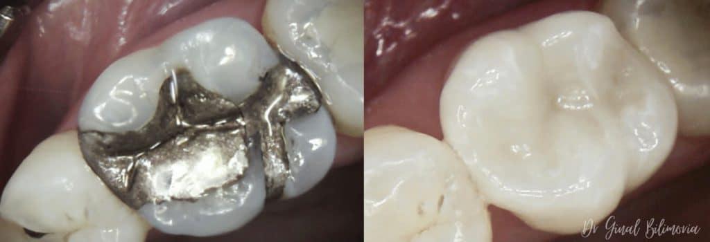 Cerec Dentistry Albany